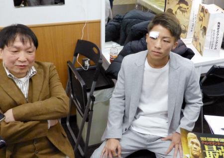 報道陣に骨折の状態を語る井上尚弥。左は大橋秀行会長=9日、東京都内